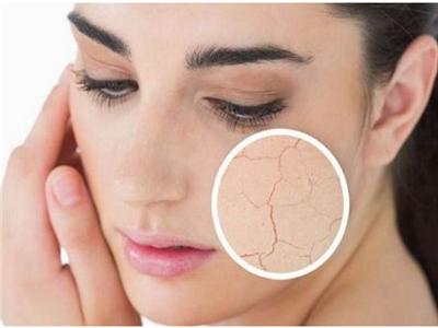 什么是干性皮肤 干性皮肤产生的原因有哪些
