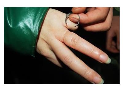 孕妇手腕腱鞘炎怎么办图片