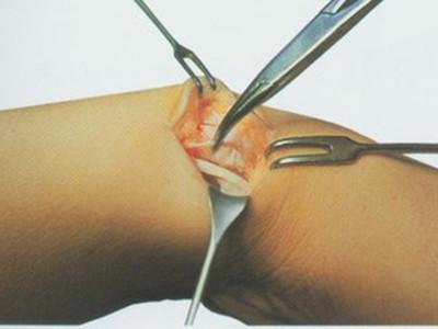 手腕腱鞘炎什么症状 得了手腕腱鞘炎的表现图片