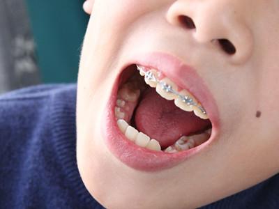 牙齿根管步骤和图片