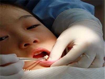 儿童蛀牙怎么治疗 把握三点治疗蛀牙