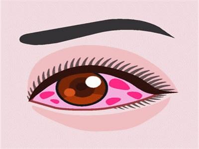 白眼球发黄图片_如果只是单纯的白眼球发黄可能是眼科疾病导致的,建议先到医院去