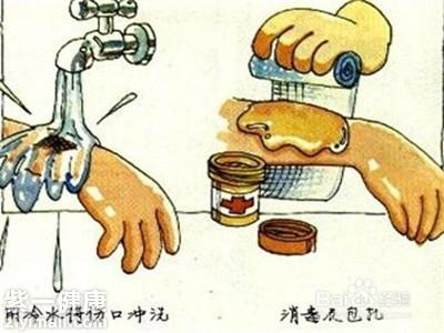 小孩子被油烫伤怎么处理 四大应急处理缓解烫伤