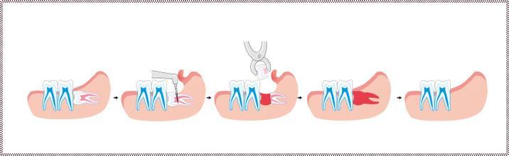 智齿一般生长的位置是牙槽骨上