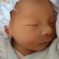 新生儿黄疸正常值、指数_新生儿黄疸多久能退-【护理】新生儿黄疸如何处理