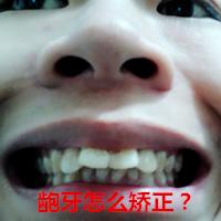 龅牙怎么矫正_矫正需要多少钱_【图】有龅牙怎么办